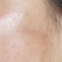 acne scars after treatment