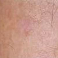 age spot after treatment