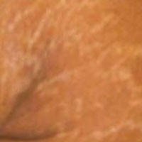 stretchmarks before treatment
